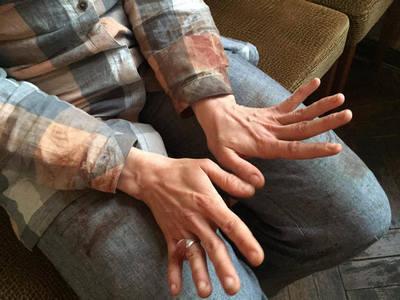 Киллеру вырезали часть легких, уОсмаева пули впозвоночнике— Покушение наПодоле