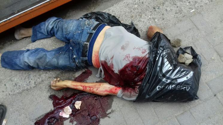 ВЗапорожье пассажир трамвая случайно напоролся навилы и умер