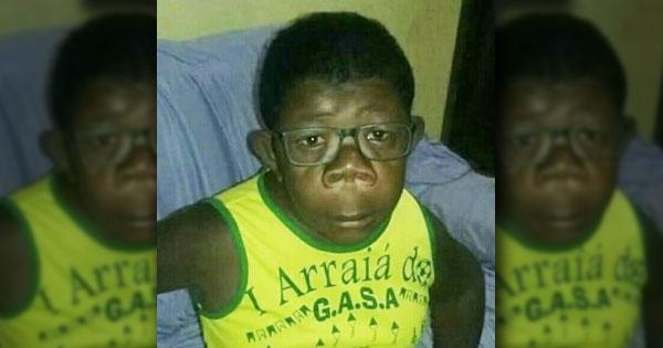 """12-летний мальчик из Анголы является """"плодом любви"""" женщины и шимпанзе: эксперты дали свою оценку 2"""