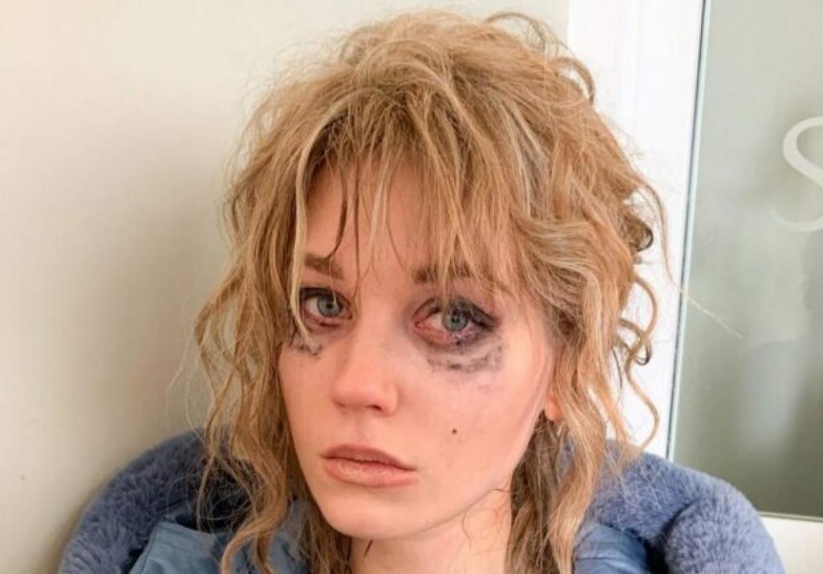 Заплаканная Асмус озадачила выходкой в нижнем белье посреди улицы