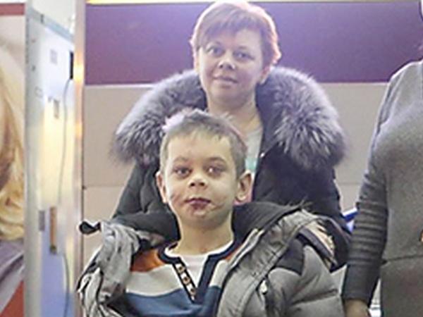 12-летнего Колю из Донбасса возвращают к жизни в Канаде: как восстанавливается мальчик, потерявший 3 конечности
