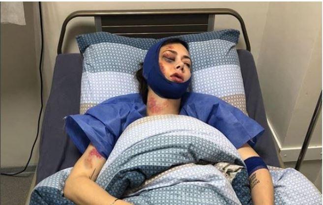 В России жестоко избили известную актрису: Настасья Самбурская опубликовала зловещее фото из больницы
