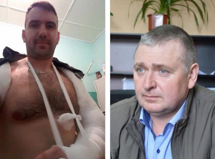 Драка на сессии Николаевского райсовета: политик Ляшко сломал руку депутату от партии Порошенко