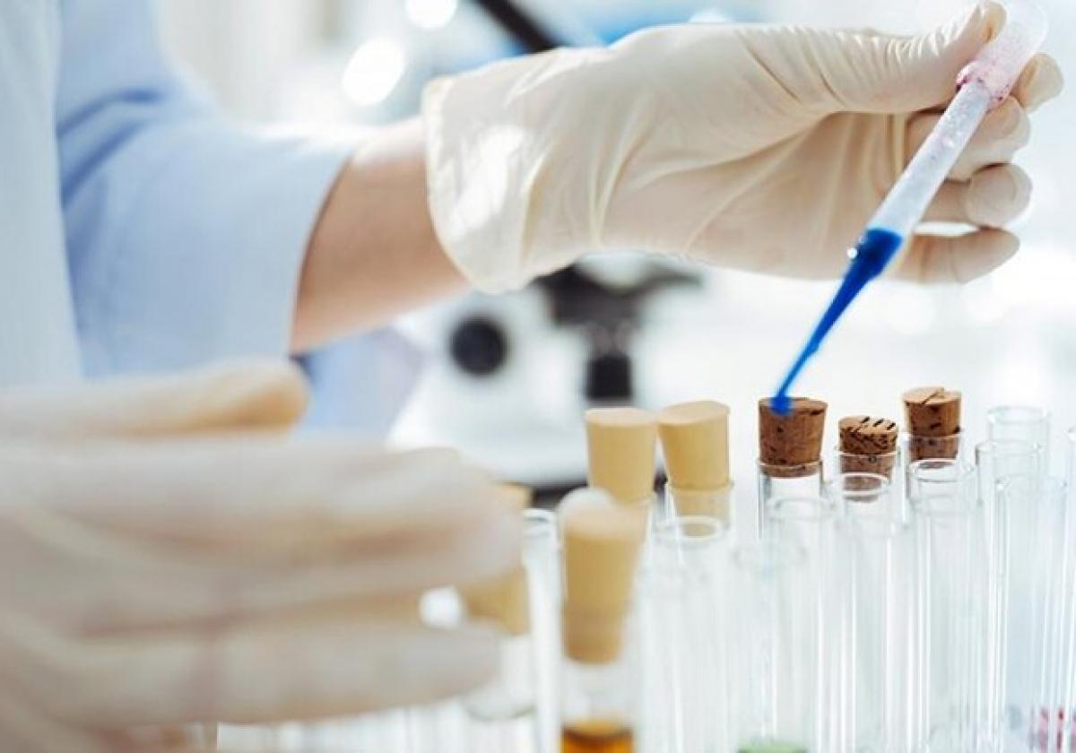 Впереди нас только 4 страны: Украина выпустила первую партию тестов на коронавирус