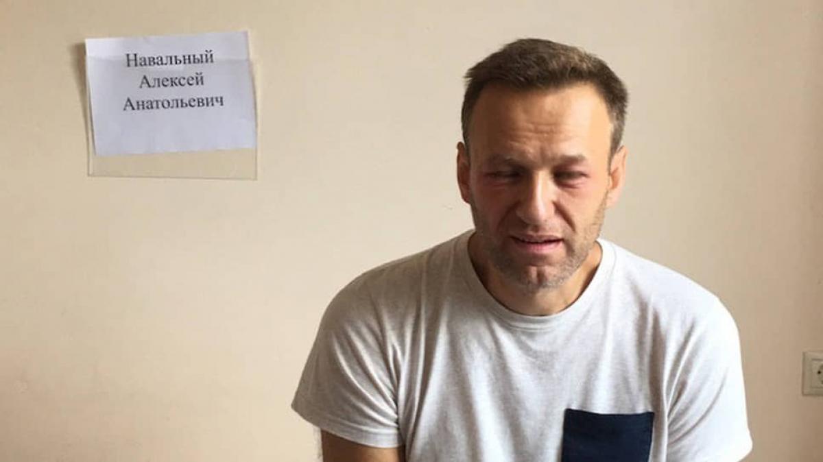 """Немецкие врачи прокомментировали данные об отравлении Навального """"Новичком"""""""