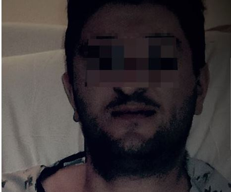В Сеть попало фото российского террориста, взятого в плен силами ООС после разгрома ДРГ боевиков, - кадры