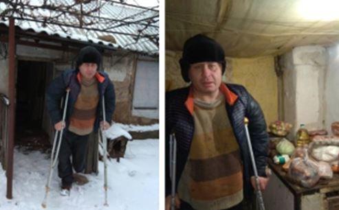 """Никому не нужный грязный бомж: в Сети показали, как """"ДНР"""" относится к покалеченным на Донбассе боевикам, - фото"""