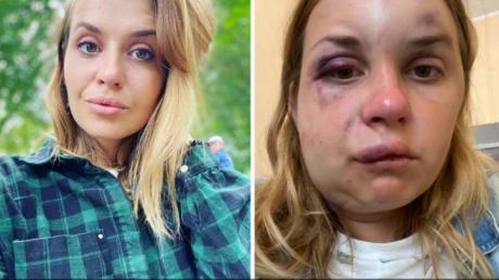 Состояние избитой в поезде Мариуполь - Киев Анастасии Луговой ухудшилось
