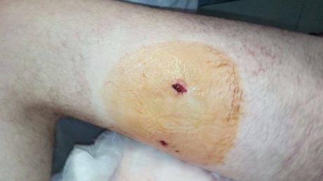 """В Сети появился снимок """"ужасного"""" ранения нардепа Дейдея - пользователи соцсетей высмеяли мемами поведение политика и то, что его везли в госпиталь на вертолете"""