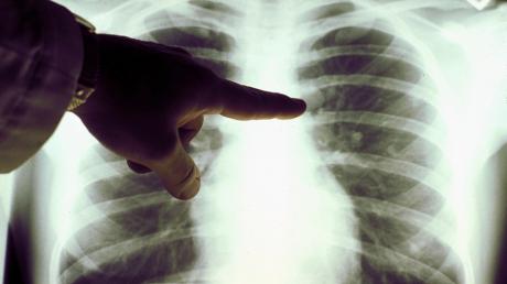 Ученая Кристин Дженкинс: почему пенсионеры и курильщики могут умереть от коронавируса
