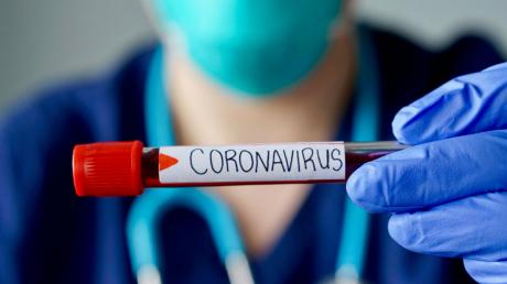 Хроника пандемии коронавируса в Днепропетровской области за 14 апреля: +11 заболевших за сутки