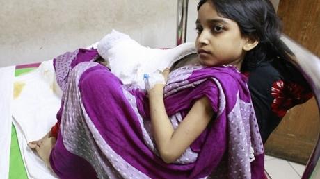 Кадры – настоящий ужас: девочка из Бангладеш поражена ужасной  болезнью, которая превращает 12-летнюю Муктамони в дерево