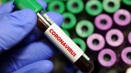 """""""Коронавирус сам пройдет"""", - биолог в США пояснил, как исчезнет инфекция"""