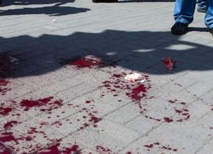 Украина, Винница, происшествия, криминал, выстрелил, в лицо, общество