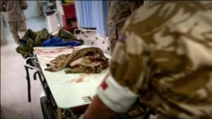 ато, пленные бойцы, пытки боевиков, конфликт в донбассе