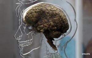 сша, медицина, оживление мозга, общество