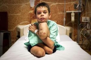 Конфликт на Донбассе, война, Канада, фото,