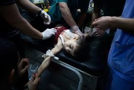 мир, Сирия, война в Сирии, Россия, авиаудар, смерть, дети, политика, общество, ИГИЛ