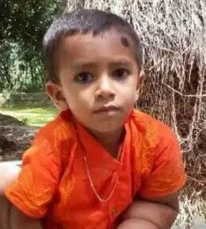 бангладеш, ребенок, дети, фото, мальчик, медицина, аномалия, слоновая болезнь