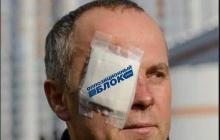 """Шуфрич с мутными глазами, вытирая пот с лица: """"Зеленский отказал Макрону в переговорах с боевиками"""", - видео"""