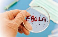 Госпитализированный в Казахстане с подозрением на Эболу является россиянином - СМИ