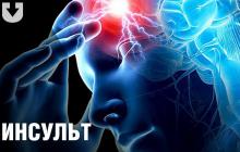 Врачи назвали 5 неявных симптомов-сигналов у женщин перед инсультом - игнорировать опасно
