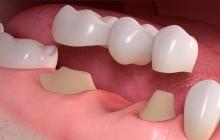 Зубные мосты: естественная улыбка без хирургического вмешательства