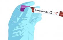 Определены области, которые первыми в Украине получат тест-системы на коронавирус: список