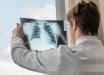 Доктор клиники Джорджа Вашингтона показал, что COVID-19 делает с легкими человека, видео