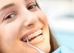 Как ставят брекеты на зубы: особенности установки и рекомендуемые сроки ношения