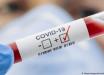 COVID-19 в странах бывшего СНГ: ТОП-6 лидеров по заболеваемости коронавирусом